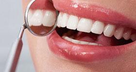 sonrisas perfectas dentistas washington seattle en